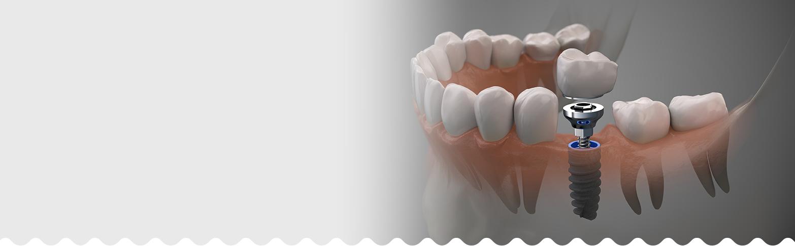 Dental Implants Fulham