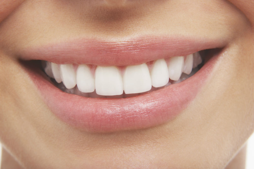 Teeth whitening dangers: why you should only Trust a Dentist