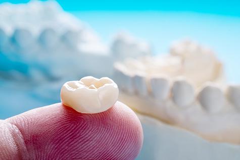 caring-for-your-dental-crowns-fulham-dental-centre