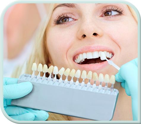 cosmetic-dentist-dental-crowns-fulham