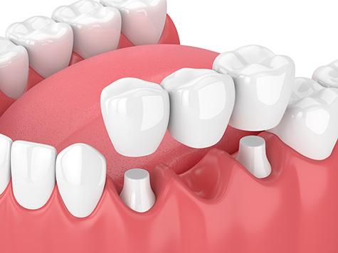 dental-bridges-fulham-dental-centre