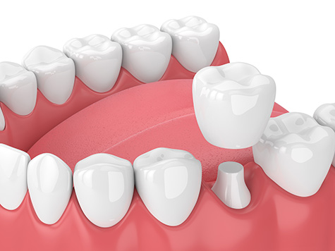 dental-crowns-fulham-dental-centre