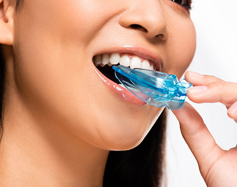 features-of-mouthguard-fulham-dental-centre