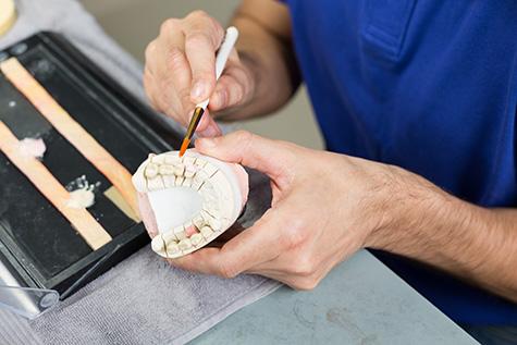 inlays-onlays-fulham-dental-centre