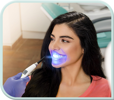 Laser Teeth Whitening – Fulham Dental Centre
