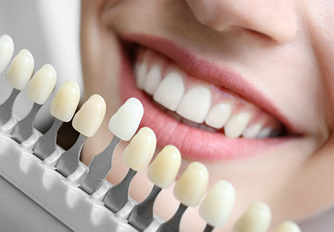 multiple-teeth-replacement-fulham-dental-centre