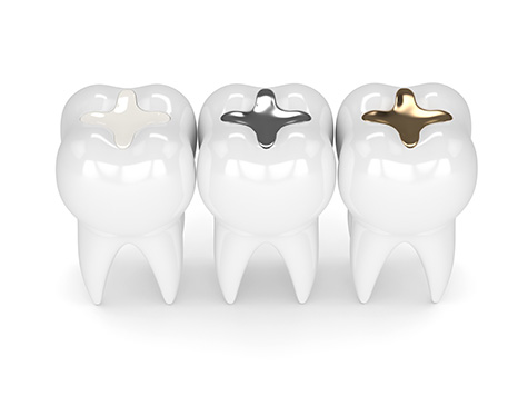 outlook-of-white-fillings-fulham-dental-centre