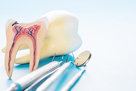 root-canal-fulham-dental-centre