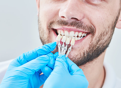 single-tooth-replacement-fulham-dental-centre